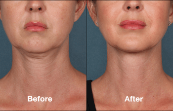 Wrinkle Relaxing Injectables: Botox & Nuceiva