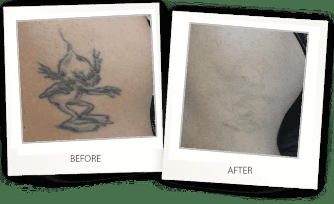 Face & Body Ultrasound + RF Contouring