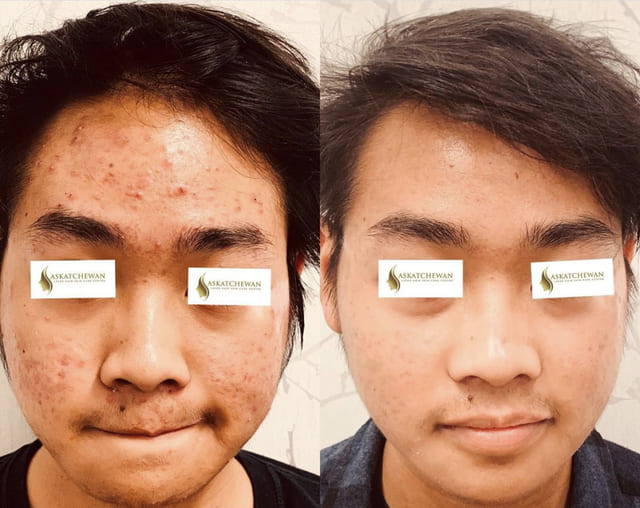 Superficial Benign Skin Lesion Laser Ablation/Cauterization/Surgical Excision